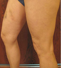 Bilateral Varicose Veins - After