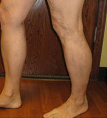 Bilateral Varicose Veins - Before