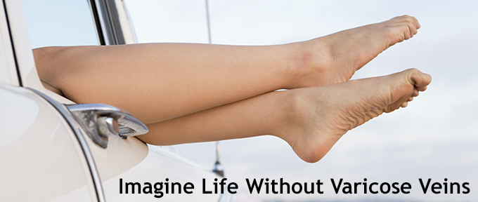 Imagine Life without Varicose Veins