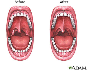Tonsillectomy Surgery