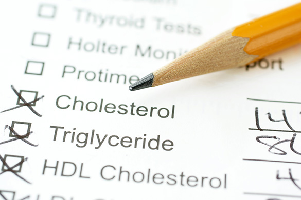 cholesterol tests