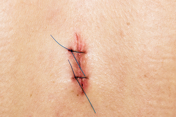 incision with stitches