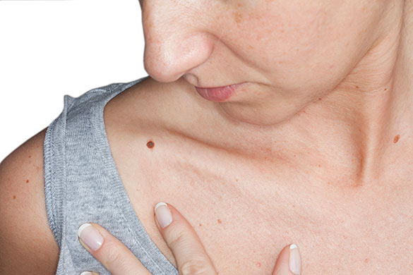 woman with moles on her skin